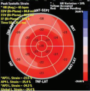 Evaluation of subclinical myocardial dysfunction using speckle tracking echocardiography in patients with radiographic and non-radiographic axial spondyloarthritis